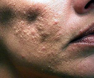 Bad Acne Scars